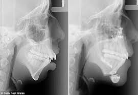 Cantik usai operasi gigi