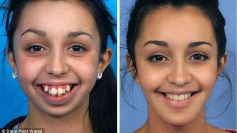 Perubahan Ellie Jones usai operasi gigi